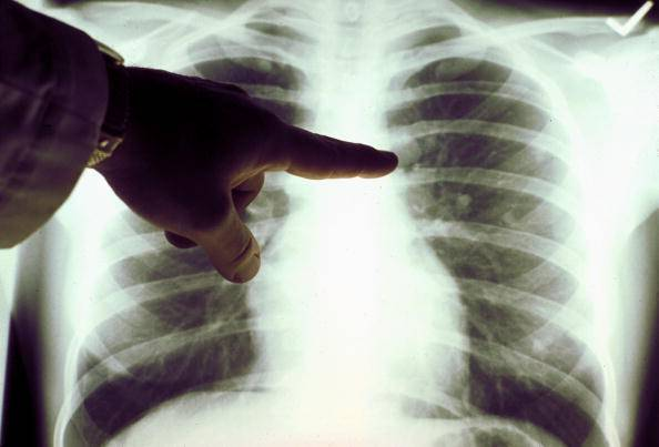 Un semplice farmaco può curare il cancro ai polmoni?