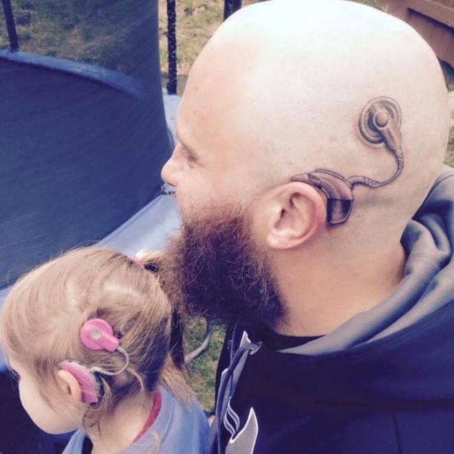 Un Geniale Tatuaggio Per Non Far Sentire Diversa La Figlia