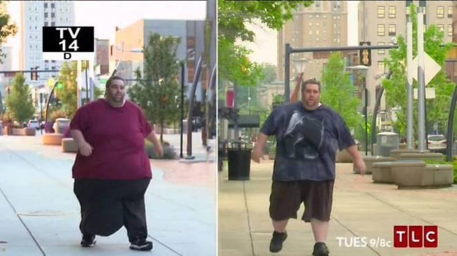 Il suo scroto pesa 35 kg: è la storia di Dan Maurer –FOTO