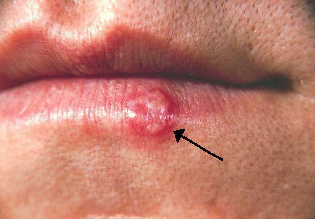 Herpes labiale fonte wikipedia