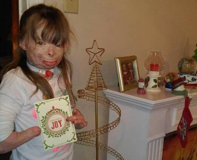 La piccola Safyre per Natale chiede solo gli auguri fonte facebook