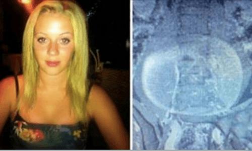 Olivia Key, nella pancia un tumore di 10 kg