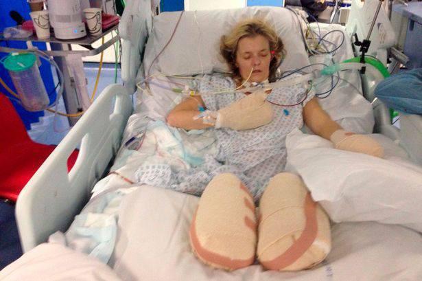 Tracy Ralph gambe e dita amputate per salvarle la vita fonte Mirror