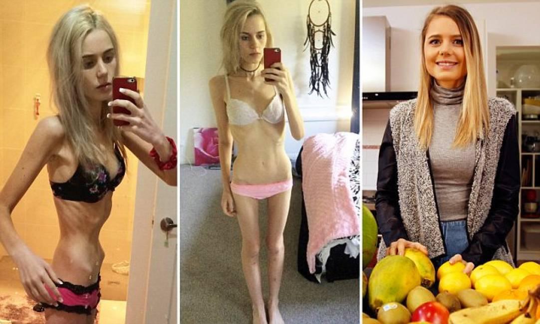 """19enne diventa anoressica e sfiora la morte """"Volevo essere popolare a scuola"""" VIDEO"""