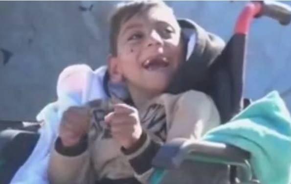 Bimbo disabile iracheno (foto dal web/MosulEye)