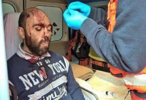 Uno dei feriti mentre viene soccorso dal 118 (Facebook)
