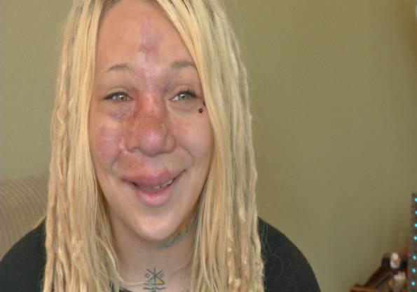 Il volto segnato da una malformazione che rischia di ucciderla – VIDEO