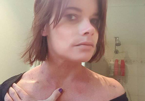 Kat Berry mostra i segni delle violenze (Facebook)