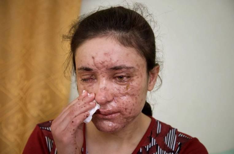 Lamiya Aji Bashar (The Sun)