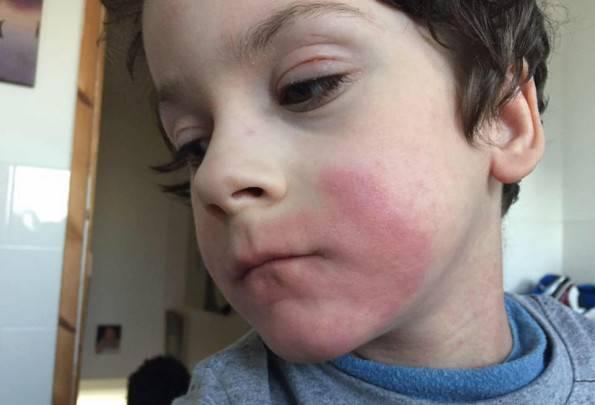 L'eczema del bimbo è troppo grave: serve la chemioterapia