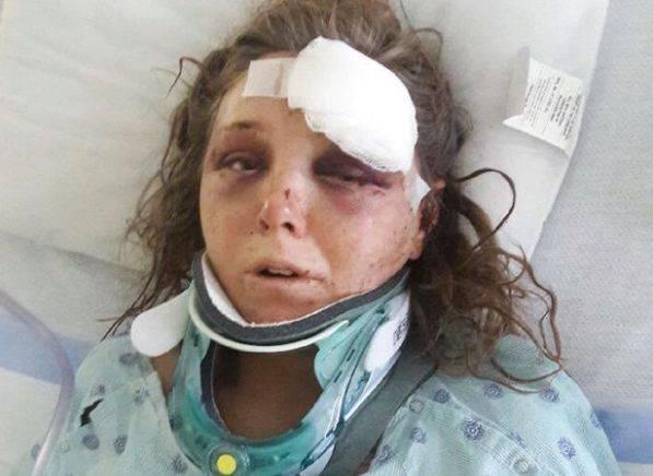 Carleigh Hager dopo l'aggressione (foto dal web)