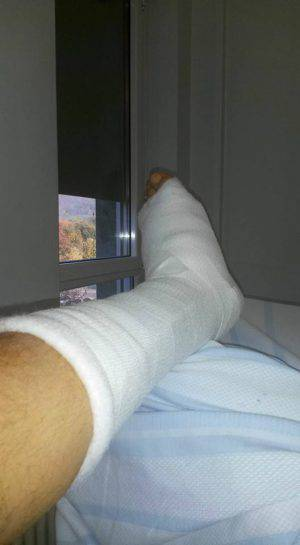 La gamba multi fratturata di Emanuele