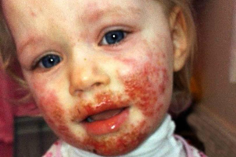 Un parente la bacia: bimba di tre anni divorata viva dall'herpes