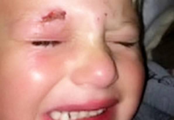 Il piccolo Jay Watson (foto dal web)