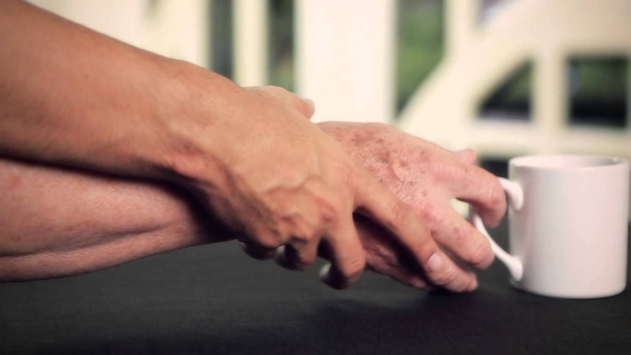 Morbo di Parkinson (Websource/archivio)