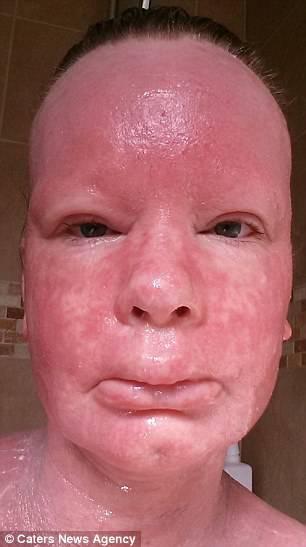 Eczema di seboreyny del trattamento principale da unguenti