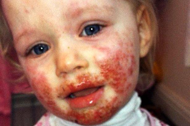 Sienna Duffield ricoperta dall'herpes (foto dal web)