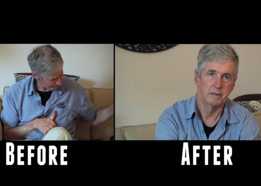 Ha il Parkinson, poi d'improvviso tutto cambia