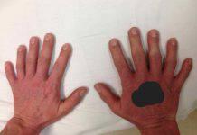 mano con sei dita