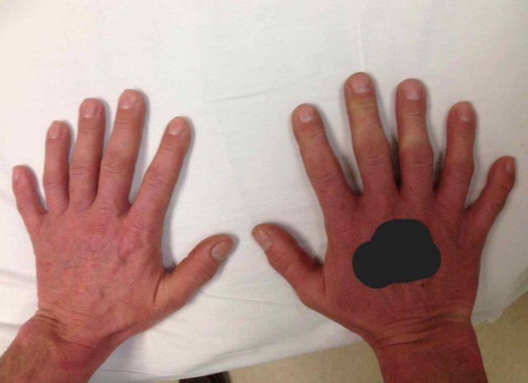 Quest'uomo ha una mano con sei dita, e funziona perfettamente
