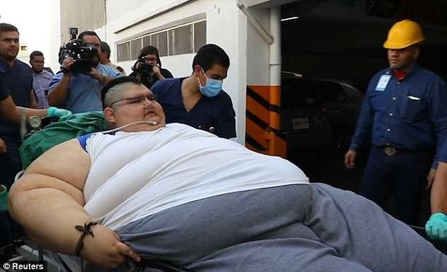 L'uomo più grasso del mondo si prepara all'intervento salva-vita – VIDEO