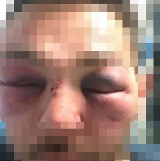 Fermati tre albanesi: pugni in faccia ai passanti senza motivo