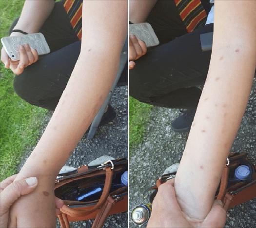 Spruzzarsi il deodorante fino a ustionarsi: la nuova pericolosa moda del momento