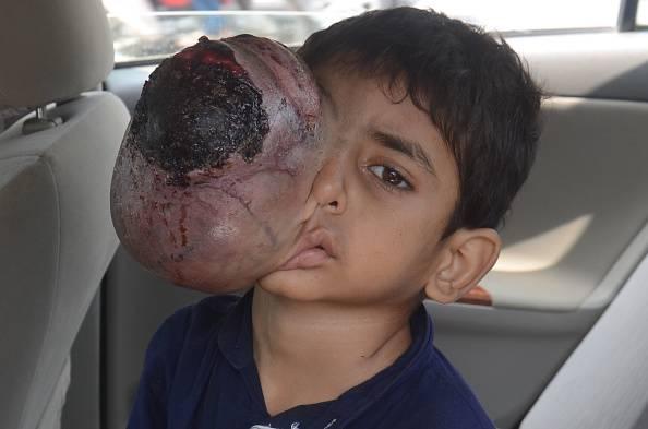"""Il nobile gesto della """"star"""" Ali Khan per un bimbo divorato da un tumore"""