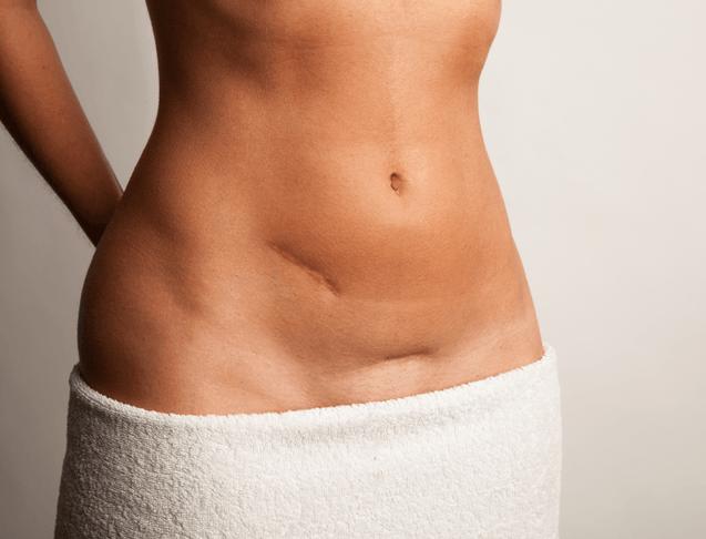 Tumore alle ovaie: da oggi c'è una nuova terapia