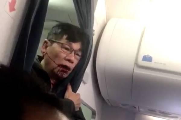 United Airlines: il dottor Dao rischia danni cerebrali permanenti