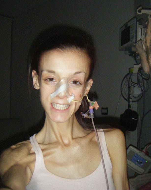 maledizione dell'anoressia