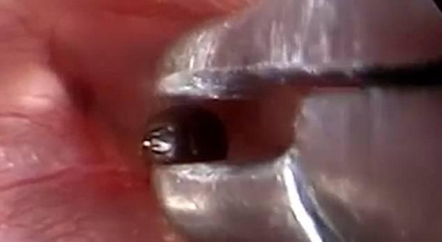 Il dottore rimuove una zecca dall'orecchio di un paziente – VIDEO