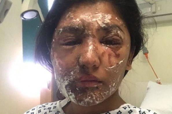 """Sfregiata con l'acido da uno sconosciuto, dopo 4 mesi """"ritrova"""" il suo volto – FOTO"""