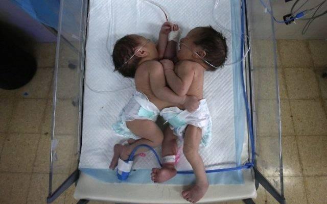 Le gemelle siamesi di Gaza: è corsa contro il tempo per salvarle