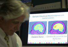 Alzheimer scoperta la molecola malattia