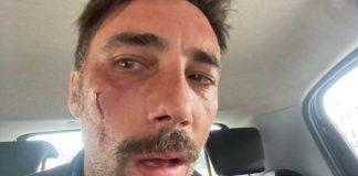 Vittorio Brumotti aggredito (web source)
