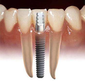 Salute | a proposito di implantologia dentale