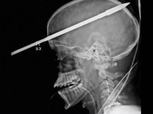 Lancia di arpione gli trafigge il cranio: 16enne vivo e vegeto per miracolo (video YouTube)