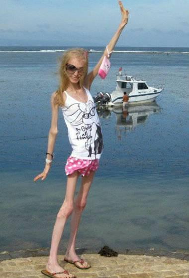 Il dramma dell 39 anoressia ragazza russa a 20 anni pesa 20 - Camera ragazza 20 anni ...