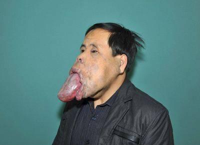 Ha una lingua lunga 25 centimetri… Da 21 anni non può chiudere la bocca..