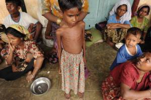 Bambino malnutrito (CHRISTOPHE ARCHAMBAULT/AFP/Getty Images)
