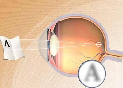 MIOPIA / Ricerca, stanato gene di uno dei più diffusi difetti della vista