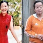 Incredibile: ragazza 26enne diventa anziana in poche settimane, fake o reazione allergica?