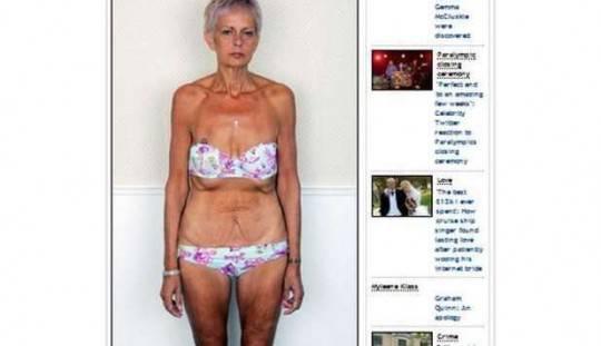 Malata di cuore perde 70Kg grazie al bypass gastrico.. Ora rischia di morire di fame…